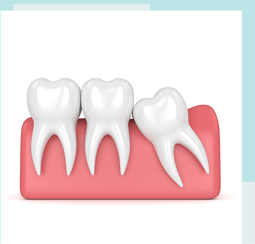 wisdom-tooth-extraction-Wolli-Creek