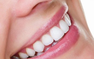 5 Benefits of Professional Teeth Whitening