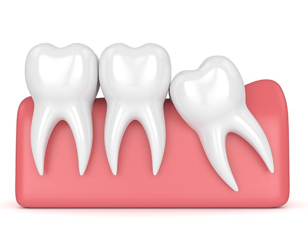 The Importance of Early Wisdom Teeth Removal