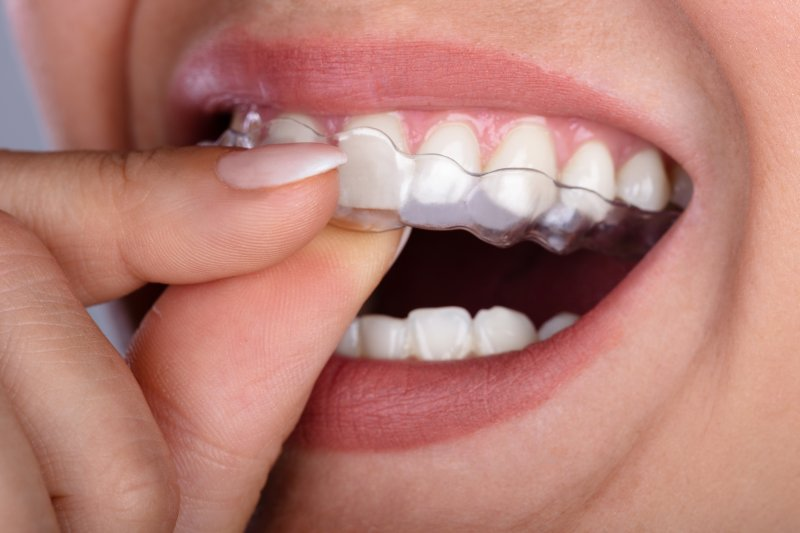 What Misalignment Issues Can Invisalign Resolve?