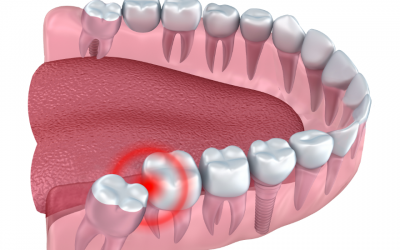 Wisdom Tooth Removal: What To Expect