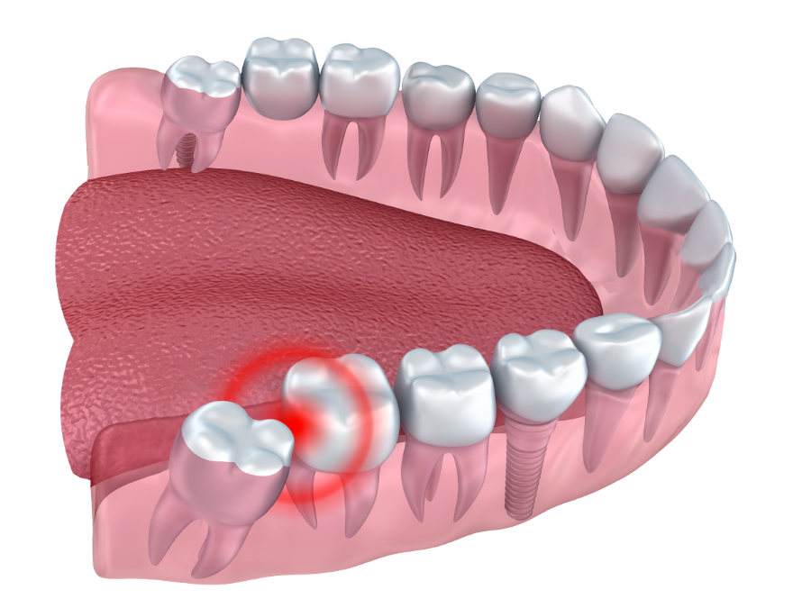Factors Affecting the Cost of Wisdom Tooth Removal